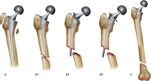 Periprosthetic Fractures Of The Femur Associated With Hip Arthroplasty