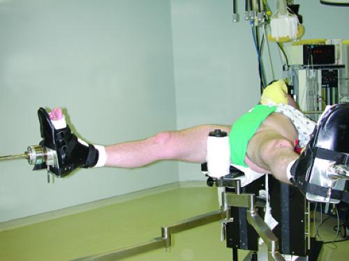 Hip Arthroscopy: Supine Position | Musculoskeletal Key