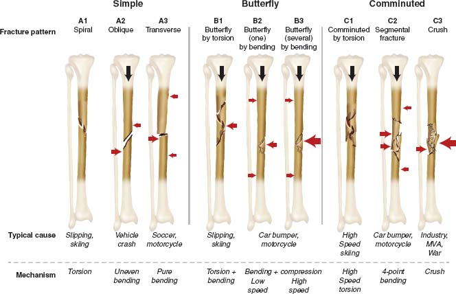 Tibial shaft fractures musculoskeletal key - Tibial plafond fracture classification ...