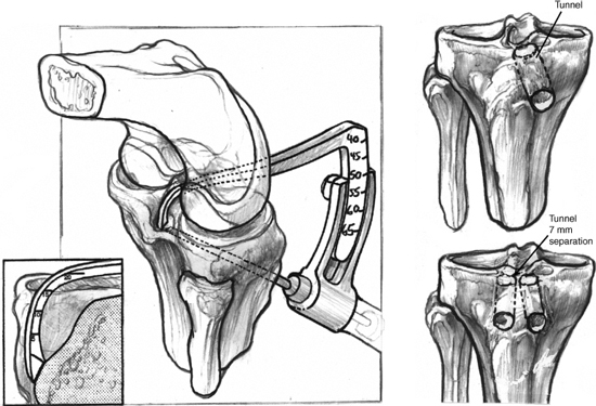 Posterior Cruciate Ligament Reconstruction All Inside