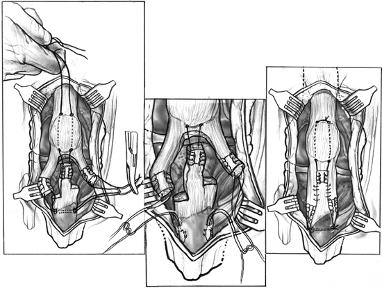 repair and reconstruction of acute and chronic patellar