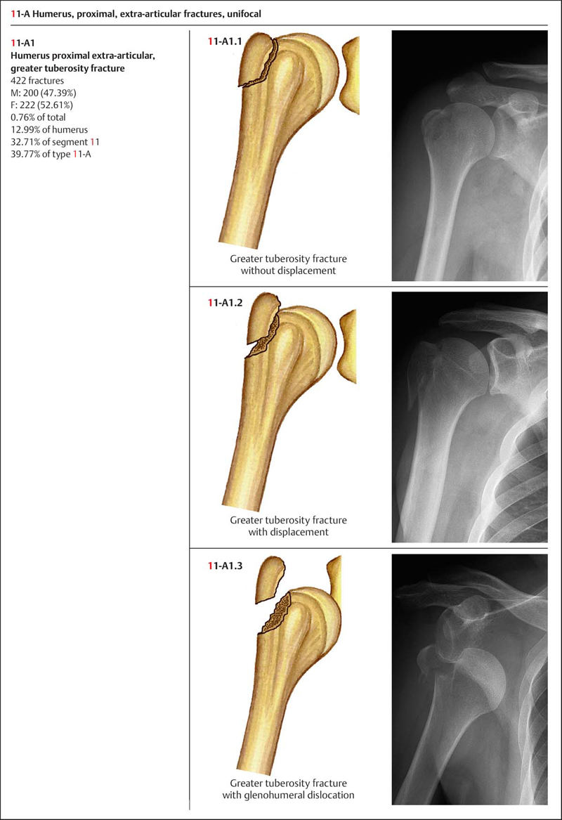 treatment options for fracture types 20062017 fixing hip fractures  each category has different operative management options treatment  redistribution between ages, genders and fracture types.