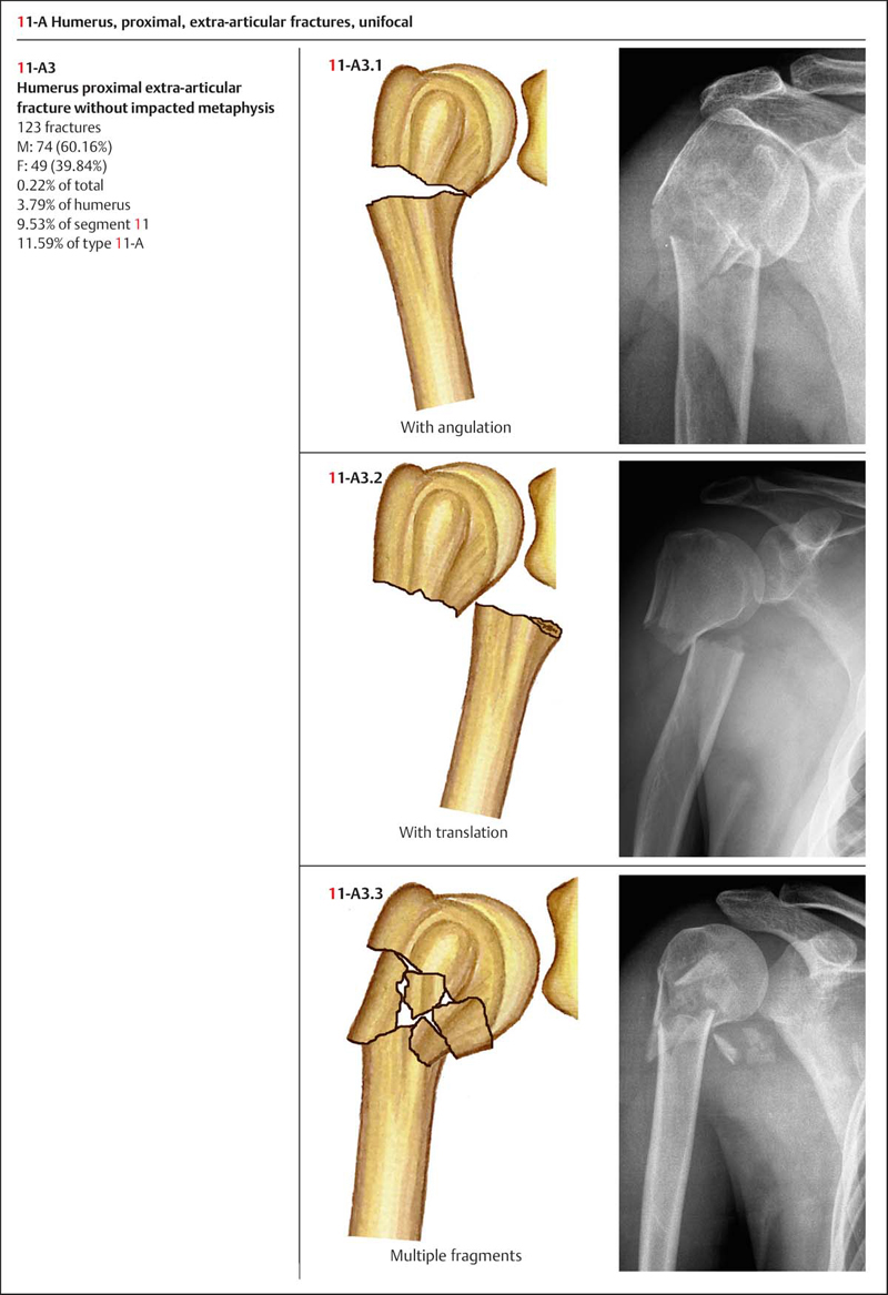 Fractures of the Humerus | Musculoskeletal Key