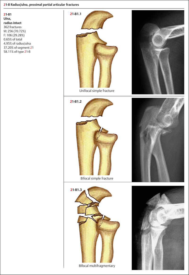 Fractures Of The Ulna And Radius Musculoskeletal Key