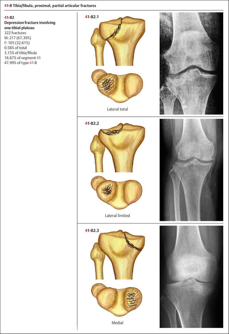 Fractures of the Tibia/Fibula | Musculoskeletal Key
