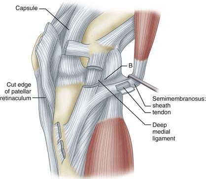 Knee Injuries | Musculoskeletal Key