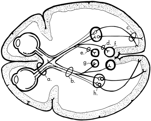 Disorders Of Vision And Visual Perceptual Dysfunction