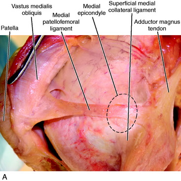Medial And Anterior Knee Anatomy Musculoskeletal Key