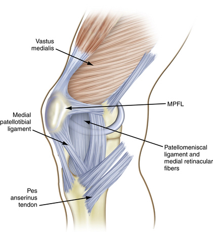 Arthroscopic Evaluation and Diagnosis of the Patellofemoral Joint ...