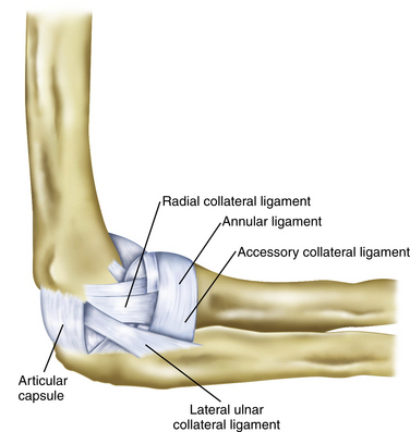 Arthroscopic and Open Radial Ulnohumeral Ligament Reconstruction for ...