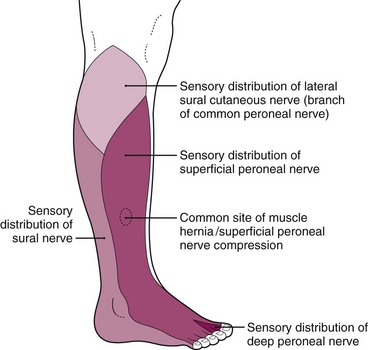 Disorders of the Foot and Ankle | Musculoskeletal Key