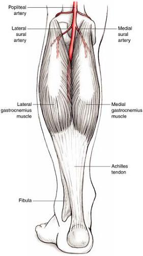 gastrocnemius artery - photo #5