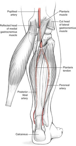 The Pedicled Soleus Muscle Flap For Coverage Of The Middle And