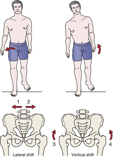 Assessment of Gait | Musculoskeletal Key