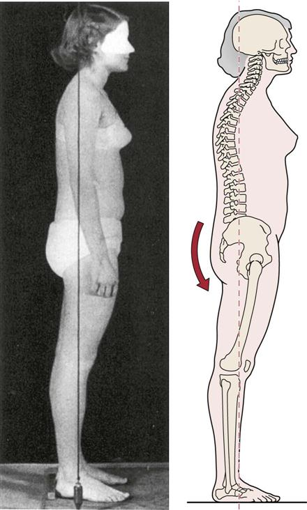 assessment of posture musculoskeletal key