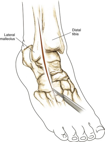 Foot And Ankle