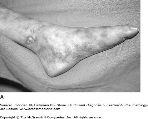 Eosinophilic Granulomatosis with Polyangiitis (Churg-Strauss