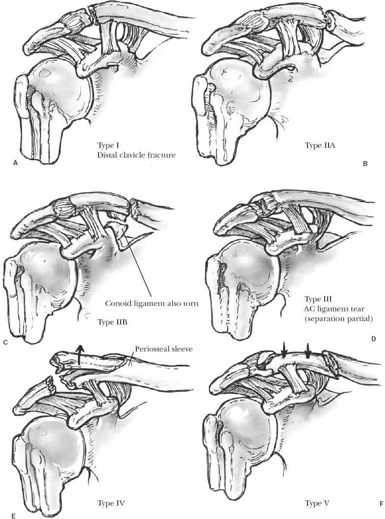 Distal Clavicle Fractures And Acromioclavicular Joint Injuries