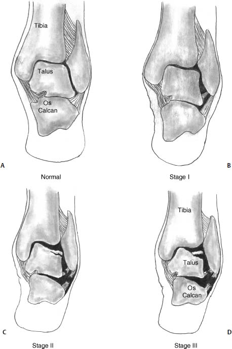 Osteochondral Lesions Of The Talus Musculoskeletal Key