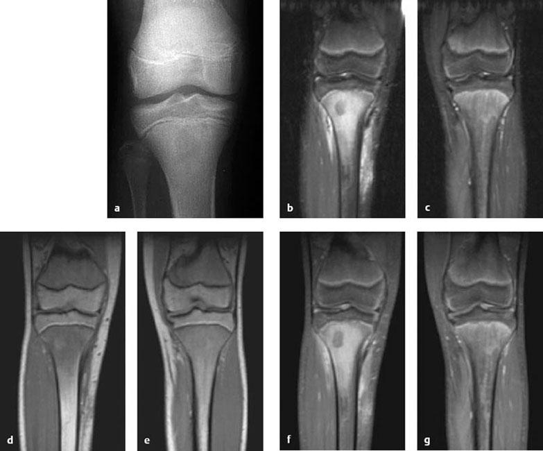 Diagnosis of Osteomyelitis   Musculoskeletal Key