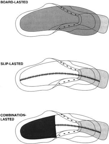 The Shoe in Sports | Musculoskeletal Key