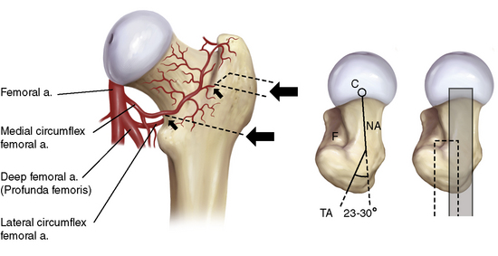 Proximal Femoral Osteotomies in Adults for Secondary Osteoarthritis ...