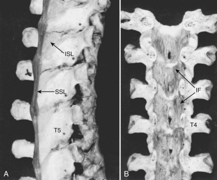 Applied Anatomy of the Spine | Musculoskeletal Key