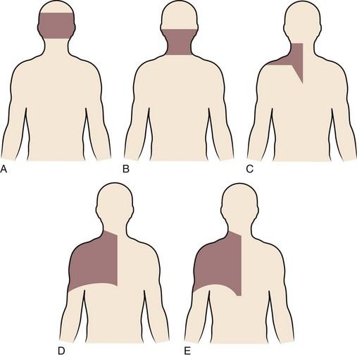 retrolisthesis of c3 and c4 Cervicarthrose, arthrose cervicale, ncb, nevralgie cervicobrachiale, cervicalgies, myelopathie cervicarthrosique.
