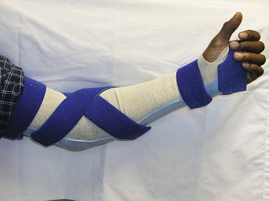 Upper Limb Orthotic Devices Musculoskeletal Key