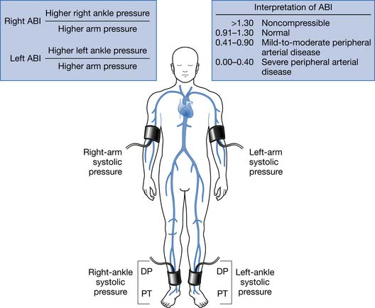 Lower Limb Peripheral Vascular Disease Musculoskeletal Key