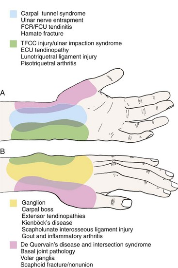 Hand and Wrist Pain | Musculoskeletal Key