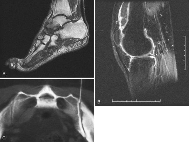 Psoriatic Arthritis Musculoskeletal Key