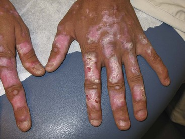 Clinical features of systemic lupus erythematosus figure 80 4 discoid lupus erythematosus involving the dorsa of the hands the lesions spare the proximal interphalangeal joints a characteristic feature of sciox Image collections