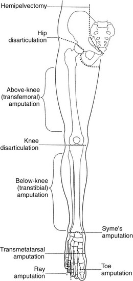 transtibial amputation