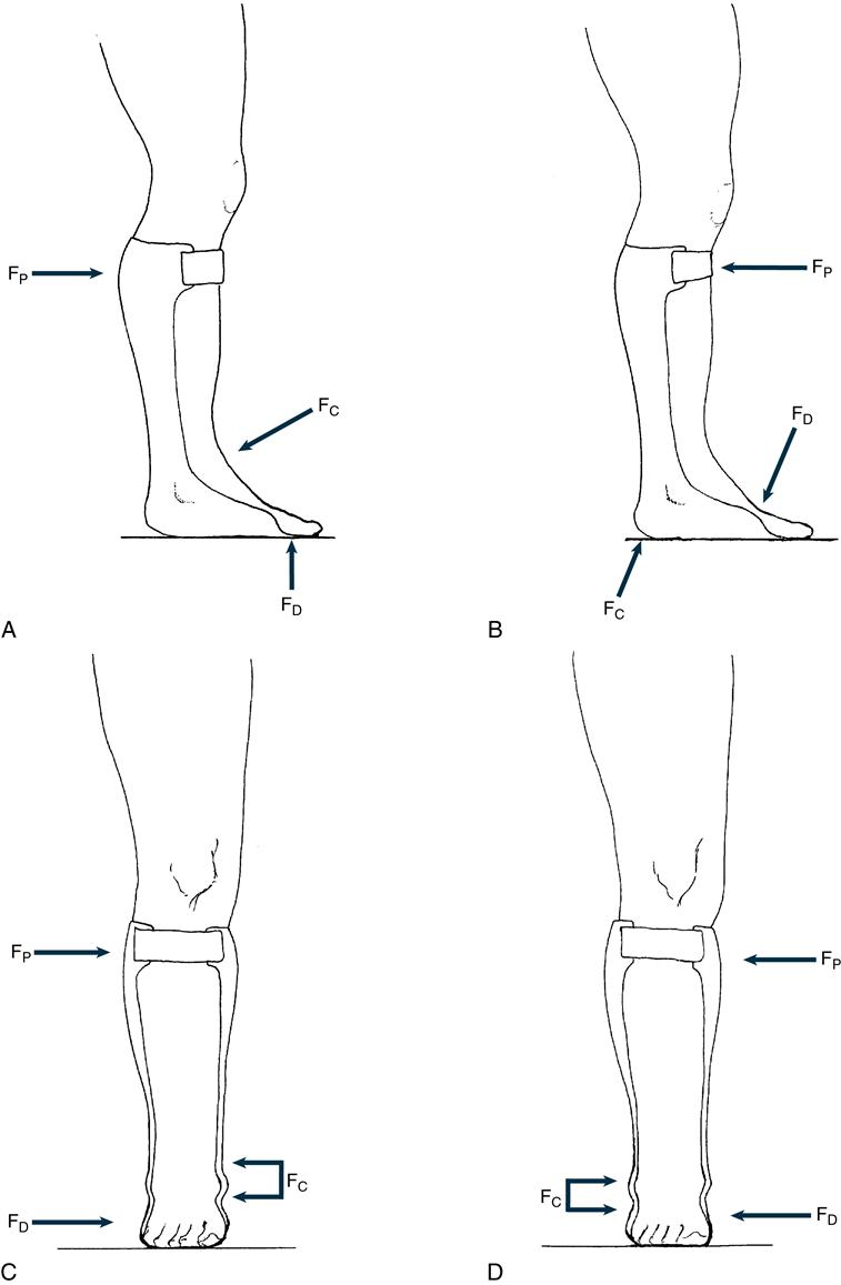 Principles of Lower Extremity Orthoses   Musculoskeletal Key