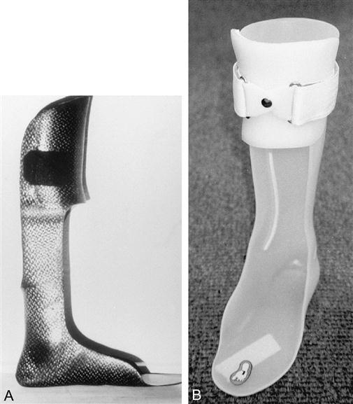 Principles of lower extremity orthoses musculoskeletal key for Floor reaction afo