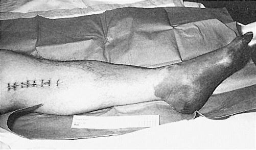 Etiology of Amputation | Musculoskeletal Key