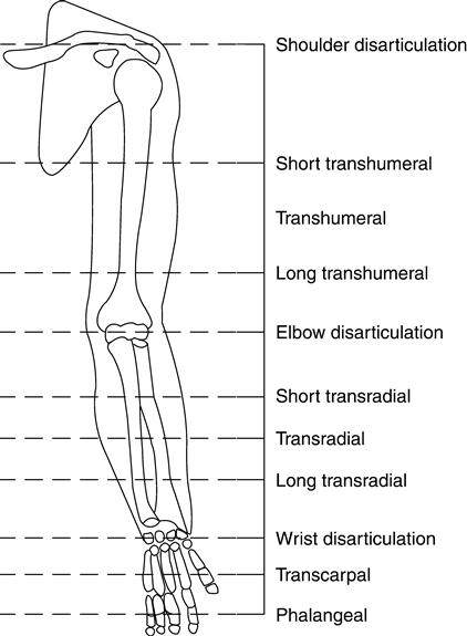Prosthetic Options for Persons with Upper-Extremity