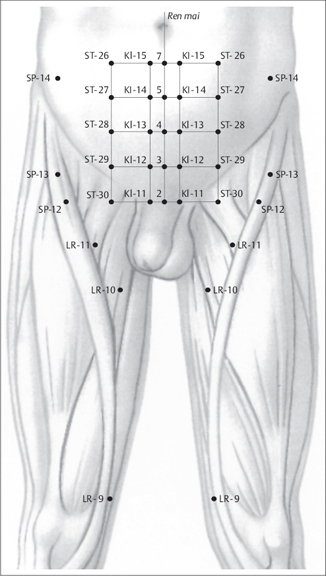 Acupuncture | Musculoskeletal Key