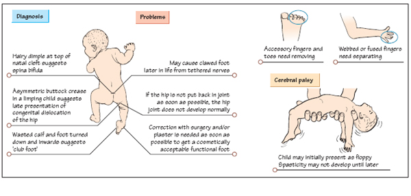 Orthopaedics In Children Musculoskeletal Key