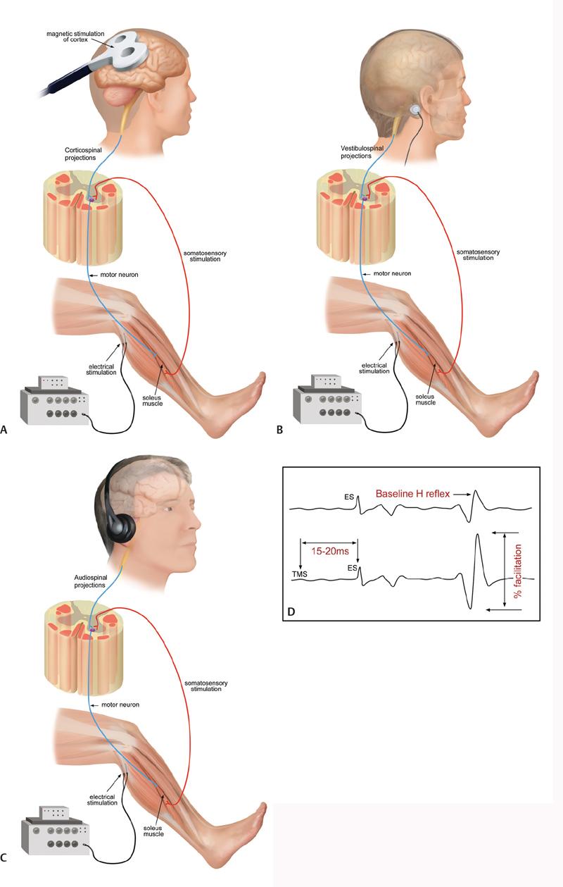 Soleus H-reflex modulation following transcutaneous high ...