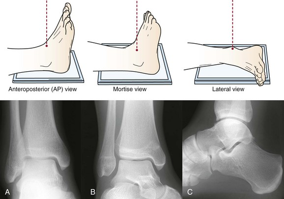Imaging Of The Foot And Ankle Musculoskeletal Key
