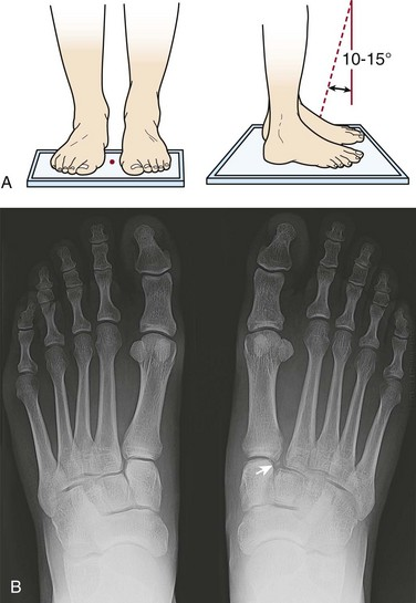 imaging of the foot and ankle musculoskeletal key schematic diagram x ray machine #13