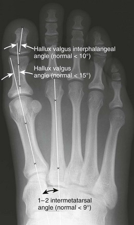 Imaging of the Foot and Ankle | Musculoskeletal Key