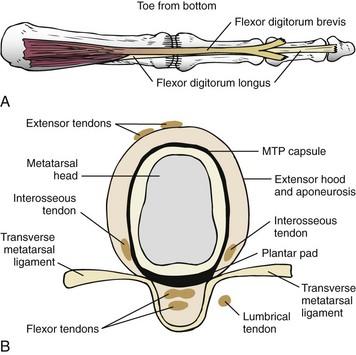 Lesser Toe Deformities Musculoskeletal Key