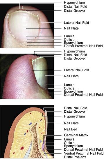 Toenail Abnormalities Musculoskeletal Key