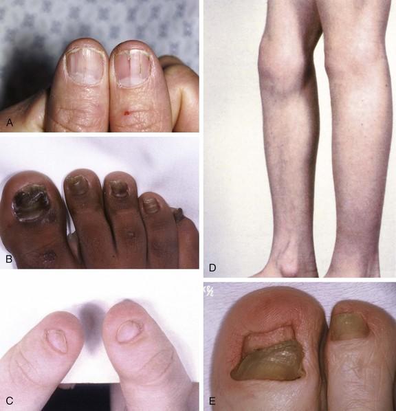 Toenail Abnormalities | Musculoskeletal Key