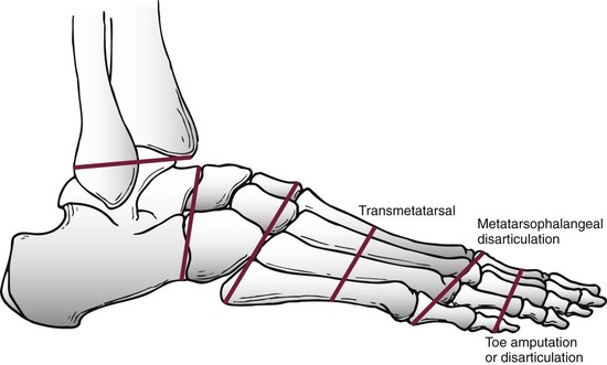 amputations of the foot and ankle musculoskeletal key