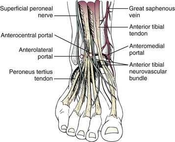 Arthroscopy Of The Foot And Ankle Musculoskeletal Key