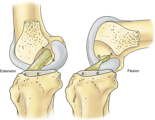 Classification Of Knee Ligament Injuries Musculoskeletal Key